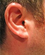 Een luisterend oor